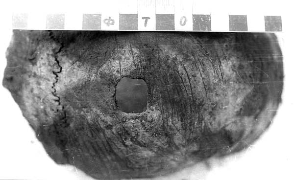 Демьянов Лаз. Дырчатый перелом свода черепа квадратной формы. Четырехугольные штыки были только в Красной армии